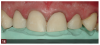 Fig 14. A guide was made from the diagnostic wax-up for use in creating pre-evaluative provisionals for the anterior maxillary dentition.