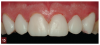Fig 15. View of the anterior maxillary pre-evaluative provisional restorations.