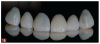 Fig 16. In this case, the chosen restorations were v-shaped taco shell veneers that enabled maintenance of the contact points and preservation of the enamel and maintained the tooth's flexural strength.