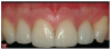 Fig 17. The result of the minimally invasive, complete dentistry approach to treating the patient's worn dentition was an esthetic, natural-looking outcome, which the patient had desired.