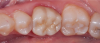 Fig 1. Monolithic molar crown of early translucent version of zirconia. Note that while the translucency is slightly better than the original tetragonal zirconia, it still does not provide excellent esthetics.