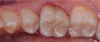 Fig 2. The zirconia crown shown in Figure 1 with 0.3 mm cut-back and a 0.3 mm layering of porcelain. Note the excellent esthetic match to the adjacent teeth with significantly improved translucency over the purely monolithic form.