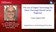 The Use of Digital Technology for More Thorough Dental Caries Diagnostics Webinar Thumbnail