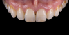 Fig 26. Image of complete monolithic lithium-disilicate crown (tooth No. 9) that served as a control.