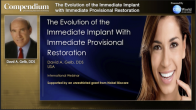 The Evolution of the Immediate Implant With Immediate Provisional Restoration Webinar Thumbnail
