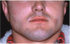 Figure 6. Acute urticaria following the oral administration of penicillin.