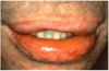 Figure 8. Acute angioedema of the lips and oropharynx following the oral administration of penicillin.