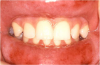 Figure 16. Type IV or Delayed Hypersensitivity Reaction in Response to a Cinnamon-flavored Sugar-free Gum.