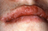 Figure 17. Type IV or Delayed Hypersensitivity Reaction in Response to an OTC Lip Balm Containing Benzocaine.