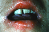 Figure 19. Severe oral, dermal, and nail infection with candidal organisms in a patient undergoing immunotherapy prior to bone marrow transplantation.
