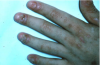 Figure 20. Severe oral, dermal, and nail infection with candidal organisms in a patient undergoing immunotherapy prior to bone marrow transplantation.