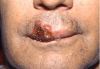 Figure 21. Atypical Herpes Labialis Secondary to the Reactivation of the Latent HSV in a Patient with Leukemia Undergoing Chemotherapy.