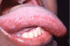 Figure 24. Hairy Leukoplakia Secondary to the Reactivation of the Latent EBV in a Patient on Therapeutic Immunosuppression Following Renal Transplantation.