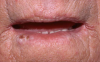 Figure 25. Squamous Cell Carcinoma of the Lip in a Patient 2 Years After Renal Transplantation.