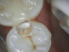 Fig 8. Open-tooth camera image showed the decay.
