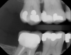 Fig 14. Pretreatment photograph, tooth No. 3.