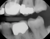 Fig 20. Pretreatment photograph, tooth No. 15 with either failing restoration or caries.