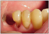 Figure 9. Toothbrush Abrasion. Image presented with permission from Martin Spiller, DMD www.doctorspiller.com.