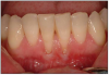 Figure 10. Gingival Recession. Image presented with permission from www.implantdentist.co.nz.