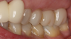 Fig 5. Teeth Nos. 13, 14, and 15 are not crowns.
