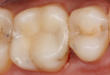 Fig 6. A two-surface inlay on an upper first molar.