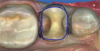 "Fig 8. For a preparation dubbed a ""crownlay,"" with complete cuspal reduction on the tooth."