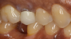 Fig 10. A patient was unhappy with the appearance of a PFM crown.