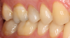 Fig 11. A crown was placed on tooth No. 4.