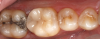 Fig 12. An onlay was placed on tooth No. 30.