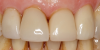 Fig 16. Two cases in which tooth No. 9 was restored.