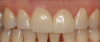 Fig 18. Two cases in which teeth Nos. 8 and 9 were restored.