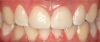 Fig 20. Two cases of complete-coverage crowns for teeth Nos. 8 and 9.