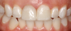Fig 21. Two cases of complete-coverage crowns for teeth Nos. 8 and 9.