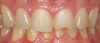 Fig 28. A patient presented with a large composite filling on tooth No. 9 that had failed or fractured.