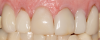 Fig 33. A patient presented with failing veneers.