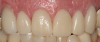 Fig 34. Final result with complete-coverage crowns.