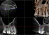 Fig 11. Preoperative radiographic image (Fig 10), preoperative CBCT (Fig 11), postoperative radiographic image (Fig 12), and 3-week recall radiographic image (Fig 13).