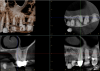 Fig 15. Preoperative radiographic image (Fig 14), preoperative CBCT (Fig 15), postoperative scans (Fig 16 and Fig 17), and inverted postoperative image (Fig 18).