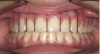"Figure 2   A balanced appearance of the anterior teeth is represented by a ""golden proportional"" of 1.618 for the maxillary central incisor, 1 for the lateral incisor, 0.618 for the canine."