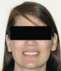 Figure 6  Facial esthetics starts with the maxillary incisal edges following the lower lip in the smile, but involves much more.