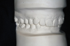 "Figure 7A  This case is an example of the importance of evaluating the bite with the joints seated in a stable position. Orthodontic treatment was rendered to correct a ""deep overbite"" and trauma to the maxillary incisors. A) Handheld models in maximum intercuspation at beginning of treatment. The deep overbite is apparent."