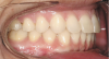 Figure 8  Intraoral view of the occlusion of patient from Figure 7 after retreatment. The occlusion is adequate to finish with equilibration.