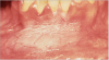 Figure 3. Snuff-Related Keratosis - courtesy of dentalcare.com