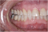 (5.) The anterior teeth must have sufficient lingual contour to allow immediate disclusion of the posterior teeth.