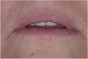 (18.) The provisional restorations show the vertical and horizontal changes in the incisal edge position.