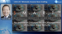 S.M.A.R.T. Minimally Invasive Bone Grafting: An Innovative Solution For The Management Of Esthetic Zone Defects Webinar Thumbnail