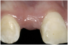 Figure 2  Congenitally missing maxillary right lateral incisor.