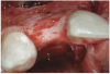 Figure 7  Post-augmentation alveolar ridge width net gain of 7 mm (7 months).
