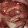 Figure 12  Preparation of left sinus augmentation and alveolar ridge split.