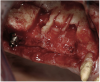 Figure 20  Removal of the failing implants.